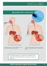 ДРЕНАЖ ТИПА «НАГАРАДЖА» для эндоскопического введения
