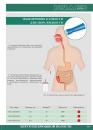 ЗОНД ИНТУБАЦИОННЫЙ для дренирования тонкого кишечника