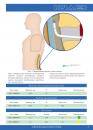 Игла Туохи для установки эпидурального катетера